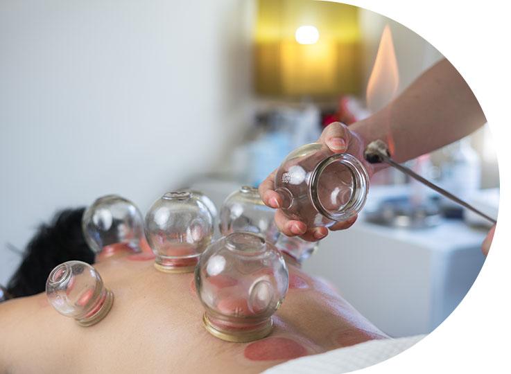 Les-bienfaits-d'un-massage-aux-ventouses