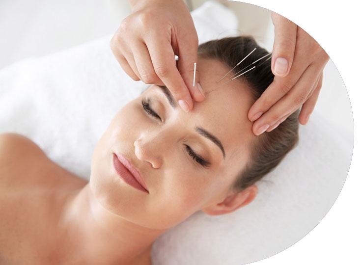 L'acupuncture pour stimuler l'auto-guérison